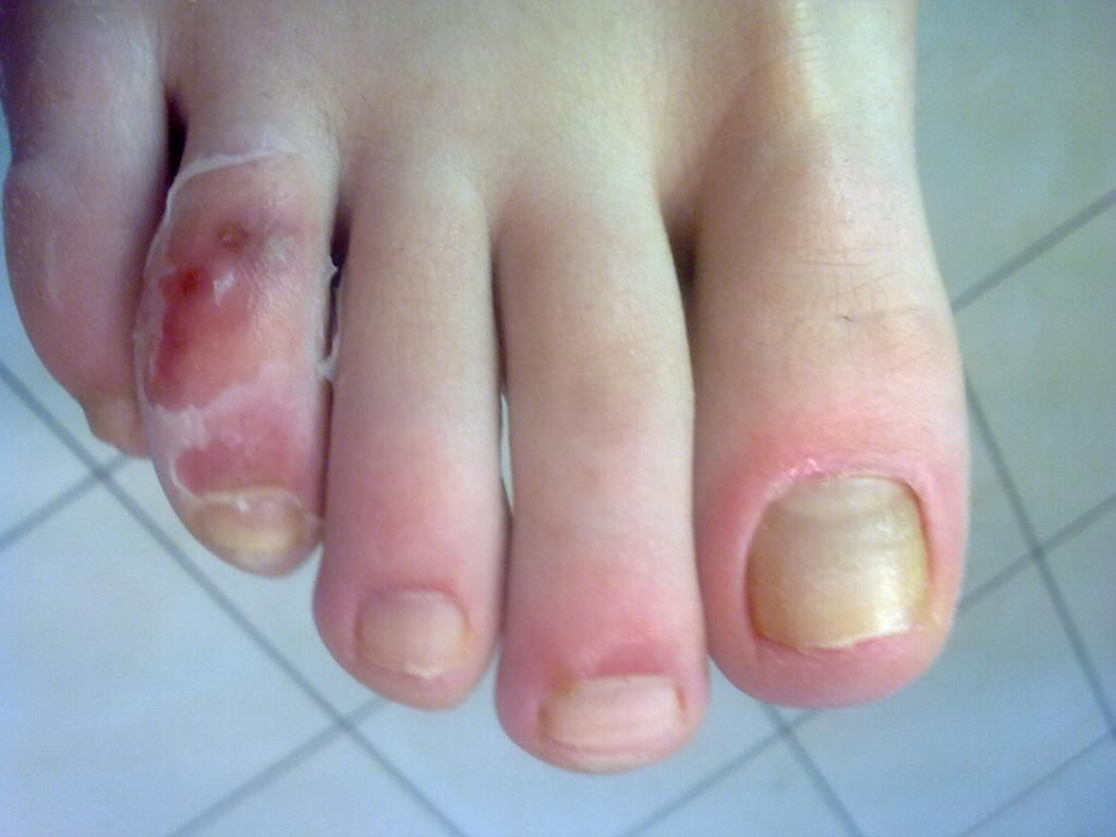 Poparzona, zniszczona skóra palca - skutek samodzielnego stosowania środków złuszczających.