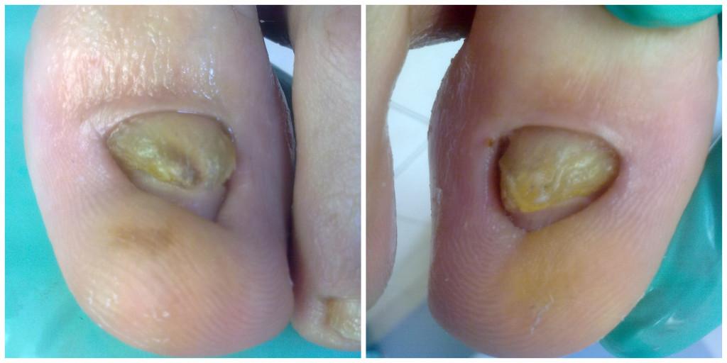 Znaczna deformacja płytki paznokciowej i opuszka. Pacjent intensywnie uprawiający sport, stopy poddane dużym przeciązeniom.