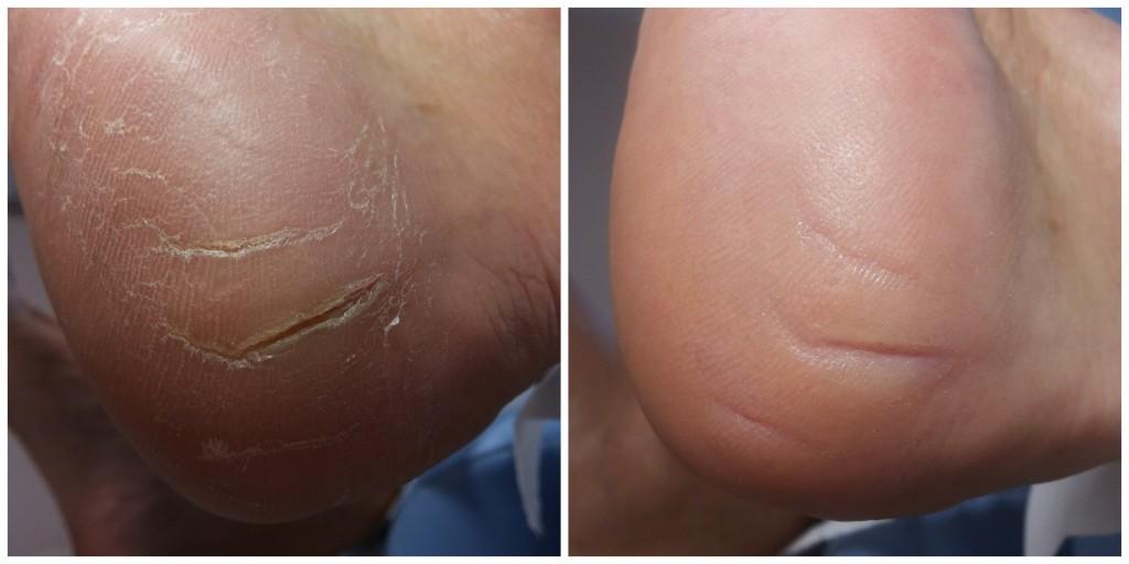 Szczeliny w powierzchni skóry pięty. Stan przed i po zabiegu.