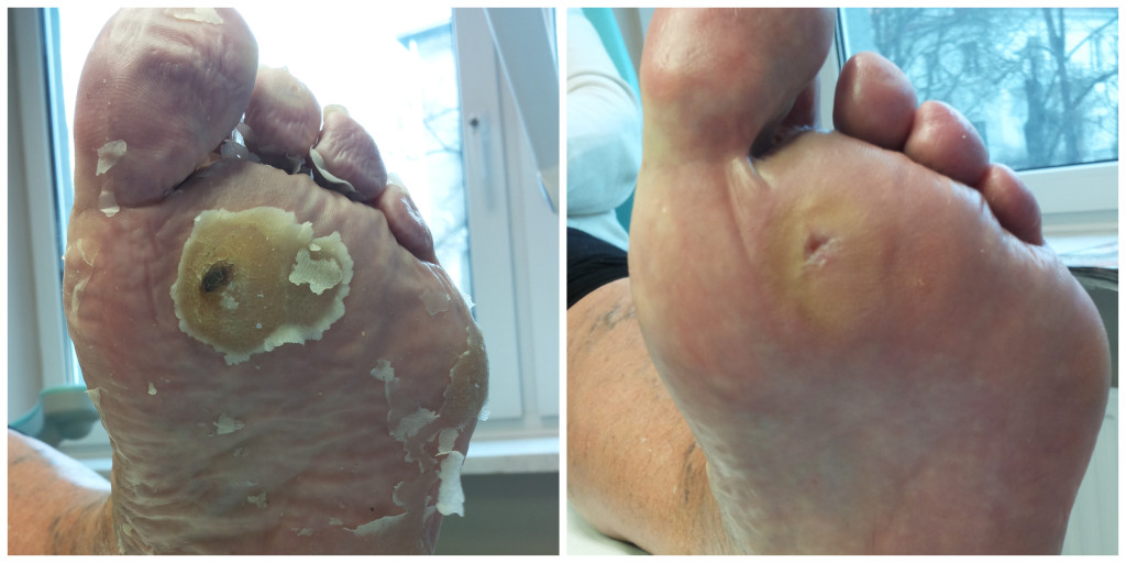Wyraźna zmiana modzelowa na śródstopiu, traktowana środkami keratolitycznymi - bezskutecznie. Obraz przed i po zabiegu w gabinecie podologicznym.