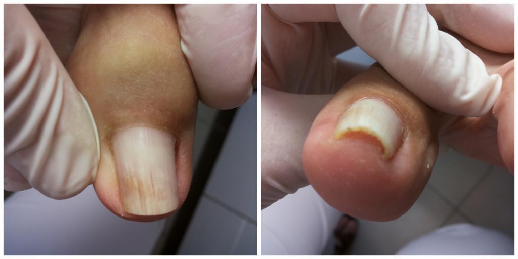 Wkręcający się paznokieć podczas zaburzeń hormonalnych.