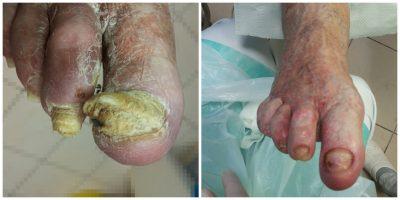 Zaawansowana grzybica paznokci. Zdjecie przed i po zabiegu podologicznym.